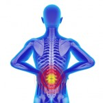 sciatica, chiropractic